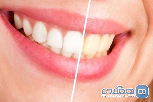علامت دندانی که مینای آن خراب شده است
