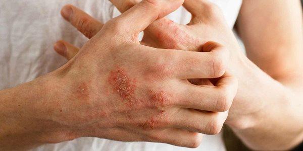 جدیدترین درمان برای اگزما؛ مالیدن باکتری به پوست