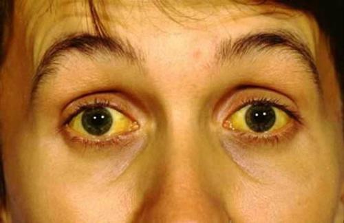 دلایل زردی پوست؛ از کم خونی تا نارسایی قلبی